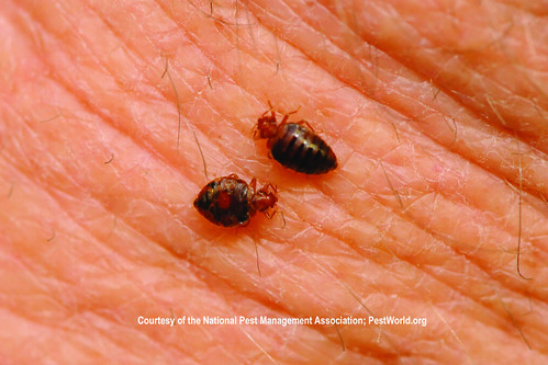 Bed bugs feeding on human skin