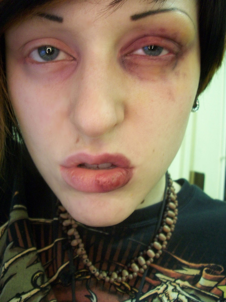 Black Eye And Fat Lip Makeup Black Eye And Simple Fat Lip Flickr