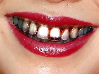Yucky Teeth