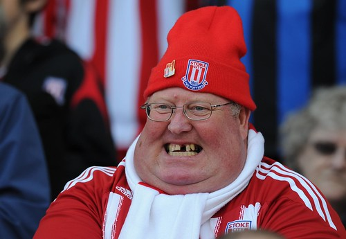 Welcome to Stoke | by Stuart MacFarlane