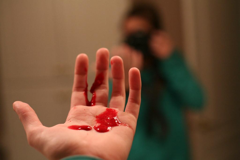 coughing up blood | yum | sara denoyo | flickr, Skeleton