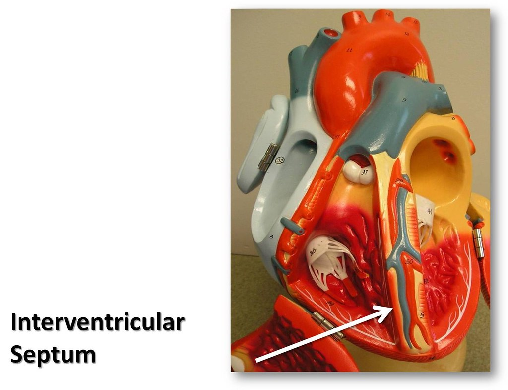 Interventricular Septum The Anatomy Of The Heart Visual Flickr