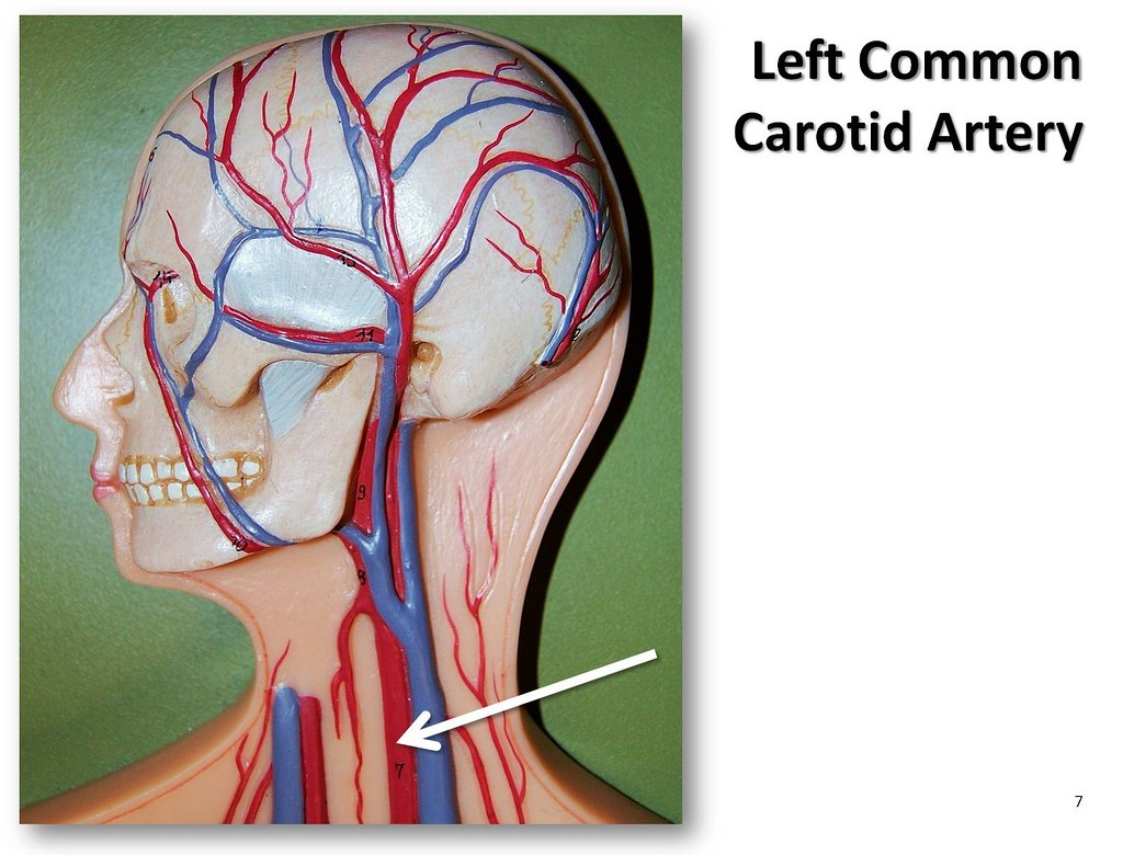 Left common carotid artery - The Anatomy of the Arteries V… | Flickr