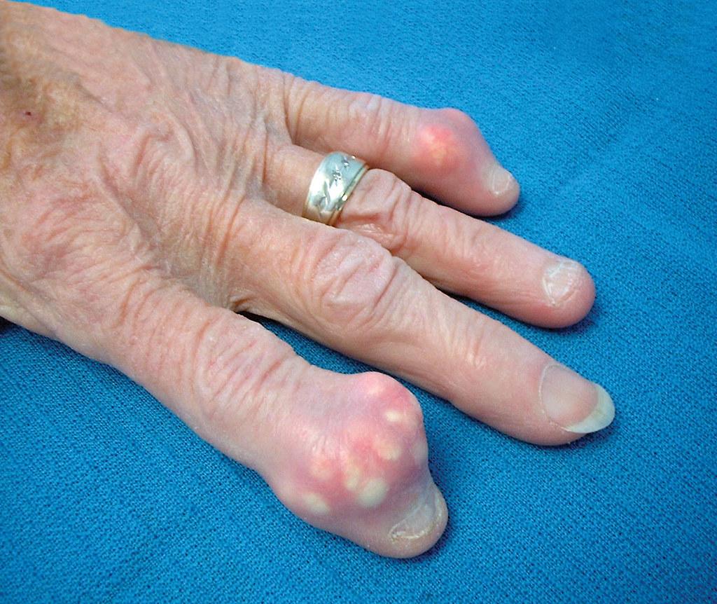 tengo el acido urico alto que no puedo comer acido urico valor normal en orina para tratar la gota