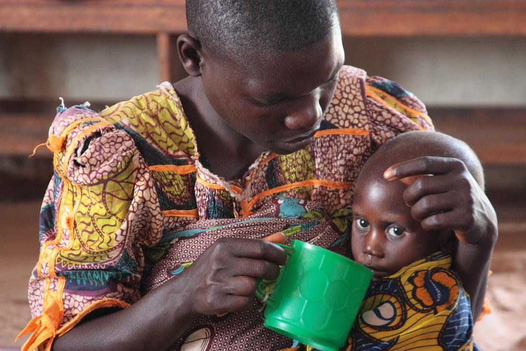 """Résultat de recherche d'images pour """"malnutrition burundi"""""""