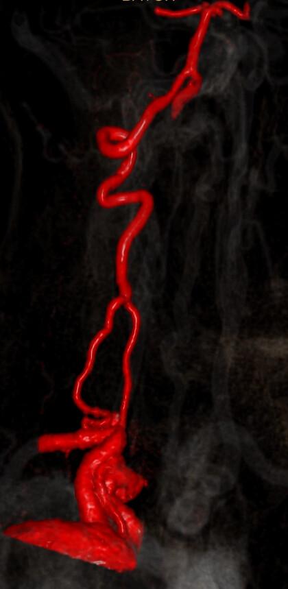 Duplicación arteria vertebral