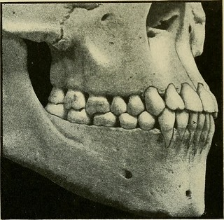 "Image from page 38 of ""Care of the mouth and teeth; a primer of oral hygiene"" (1916) 