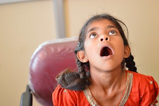Free Cleft palate Surgery India | by Trinity Care Foundation | CSR Initiatives in India