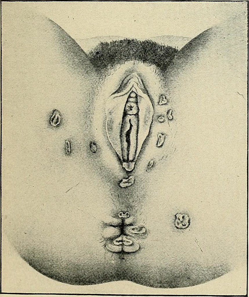 "... Image from page 197 of ""The diagnosis and treatment of diseases of  women"" ("
