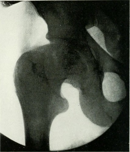 "Image from page 567 of ""The American journal of roentgenology, radium therapy and nuclear medicine"" (1906) 