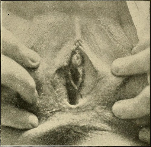 Image From Page 205 Of Quot The Diagnosis And Treatment Of Dis