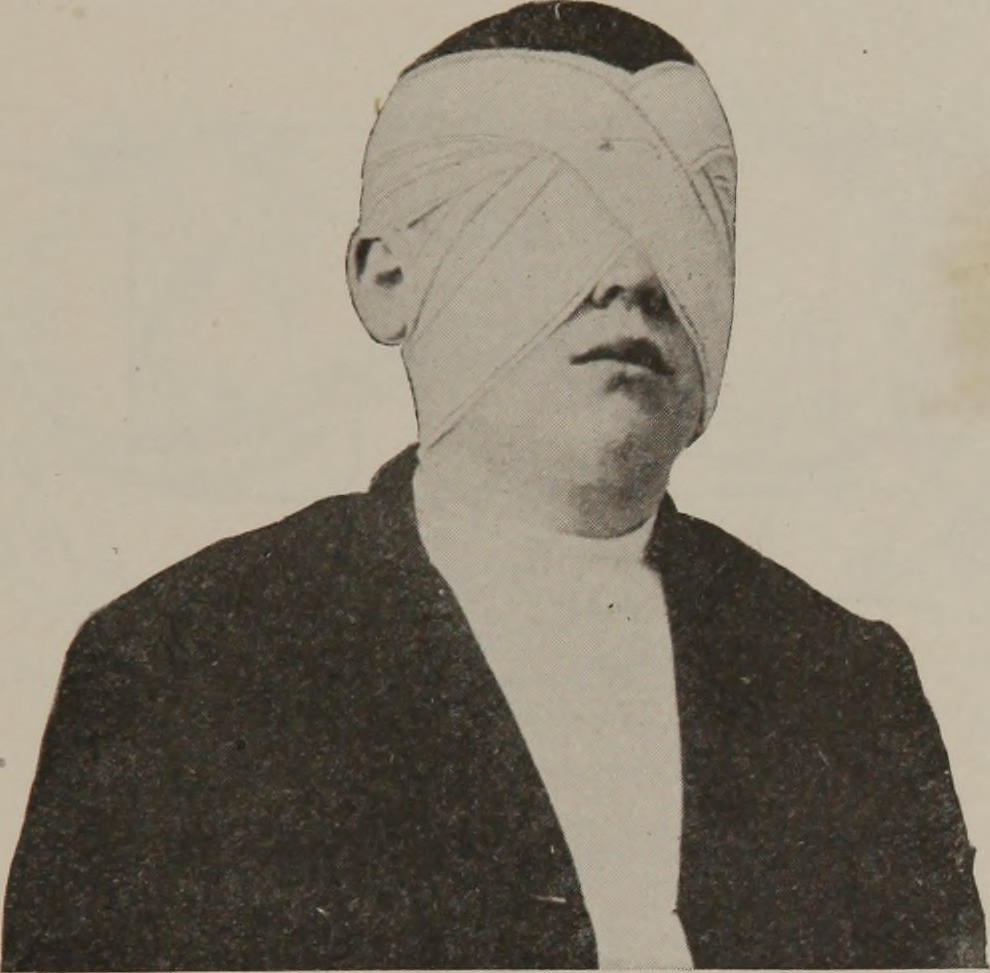 Image result for eye bandages