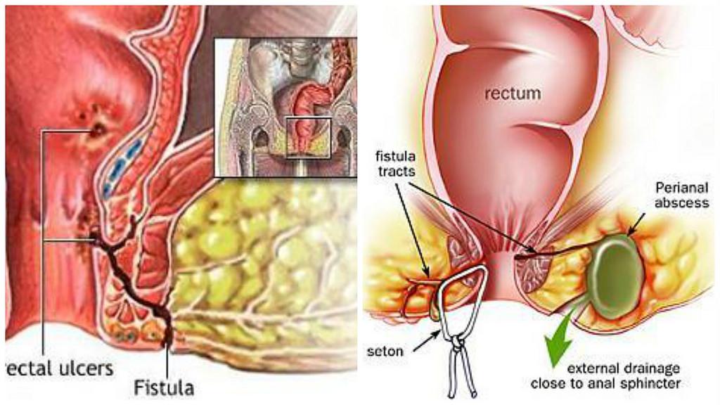 Bahaya Penyakit Fistula Ani Jika Tidak Segera Diobati
