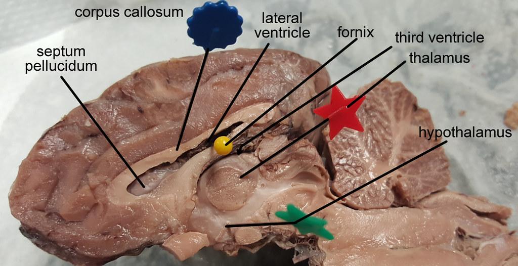 brain-corpus-callosum-01 | Brain with pins in major structur… | Flickr