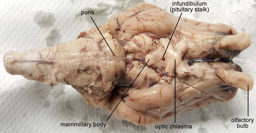 Brain Sheep Chiasma 1280px Labeled Brain Optic Chiasma La Flickr