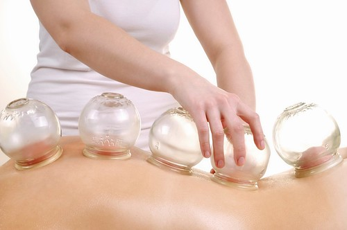 cupping_therapy