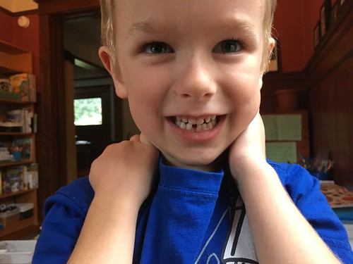 Arlo Lost His First Tooth!