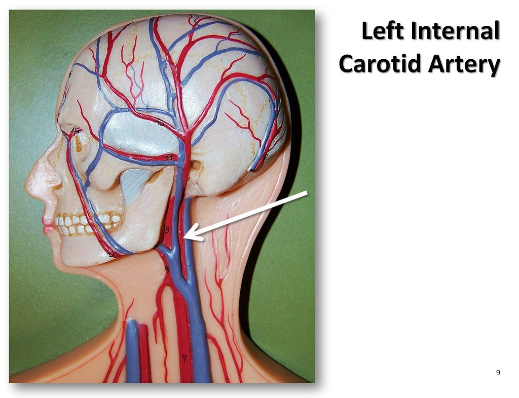 Left internal carotid artery - The Anatomy of the Arteries… | Flickr