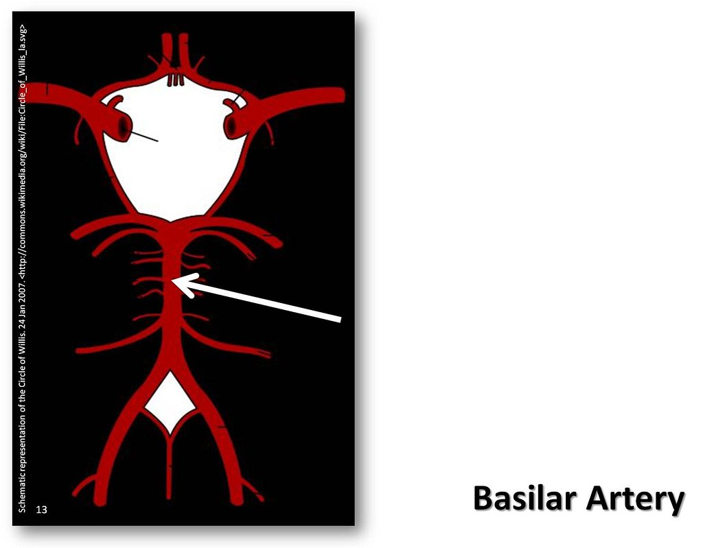 Basilar artery - The Anatomy of the Arteries Visual Guide,… | Flickr