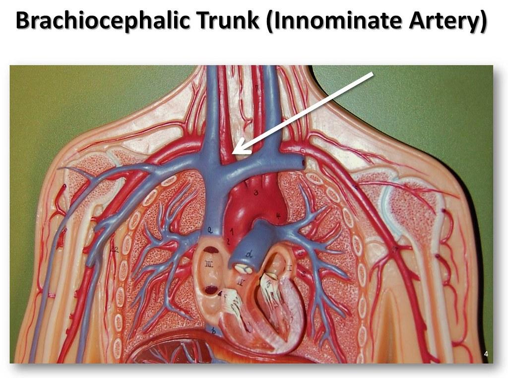 Brachiocephalic Trunk The Anatomy Of The Arteries Visual Flickr