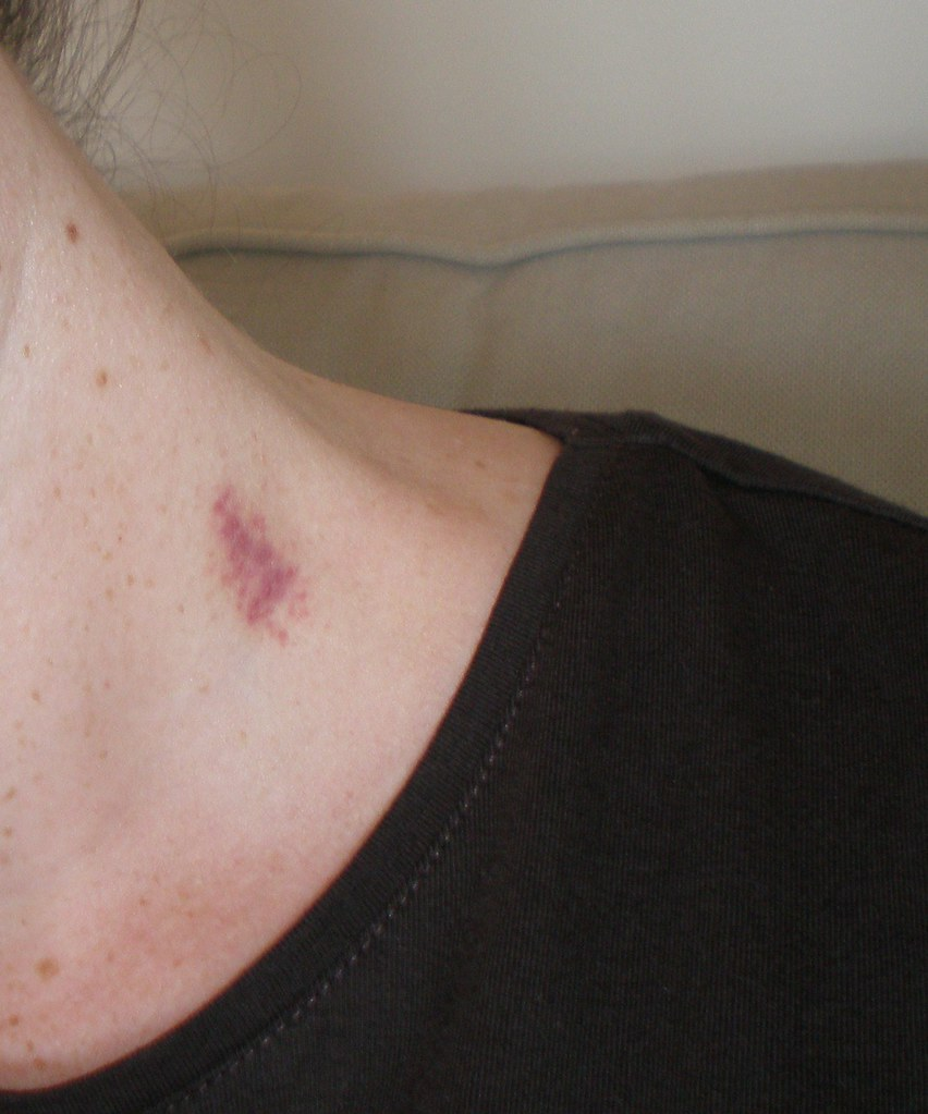 How long does a hickey last on your neck