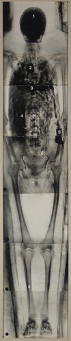 X-ray of Neshkons' Mummy (Part of the Merrin Sarcophagus) | by Samuel Merrin