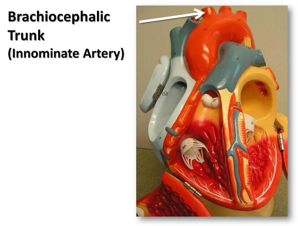 Brachiocephalic Trunk Anterior View The Anatomy Of The Flickr