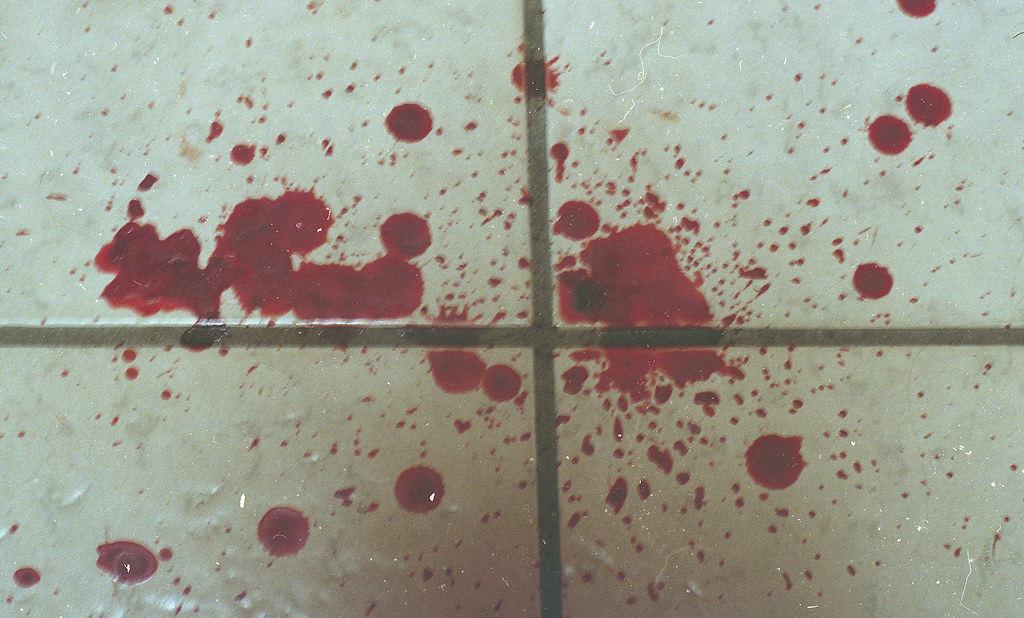 All my blood on the floor after i stepped on glass i for On the floor on the floor