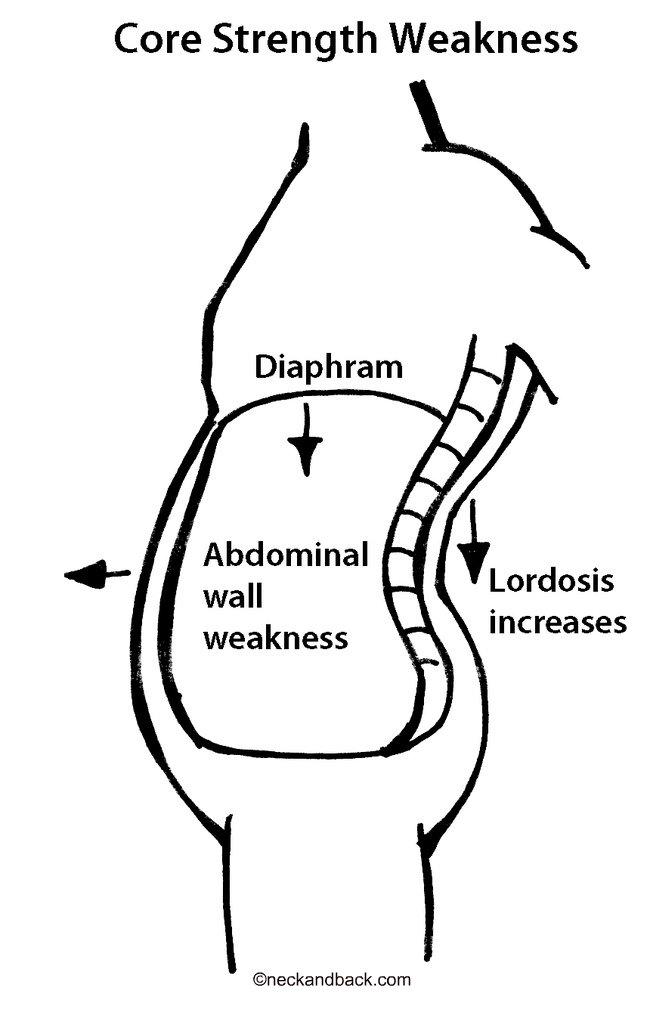 Lumbar Lordosis Lower Back Pain Core Strength Diagram Flickr