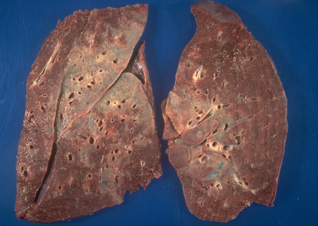 Sarcoidosis - Lung granulomas | The large areas of consolida… | Flickr