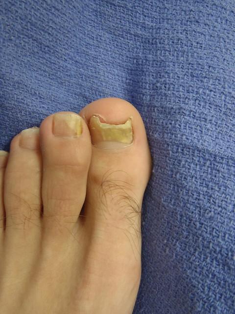 Yellow Toenails And Diabetes: Yellow Toenails (Fungus)