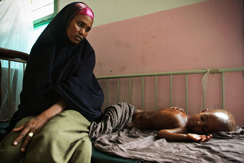 Somali Mother Seeks Treatment for Malnourished Child | by United Nations Photo