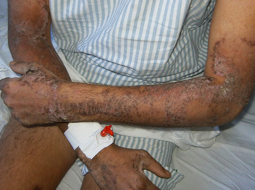 Pelagra em etilista | Doença provocada pela baixa ingestão ...