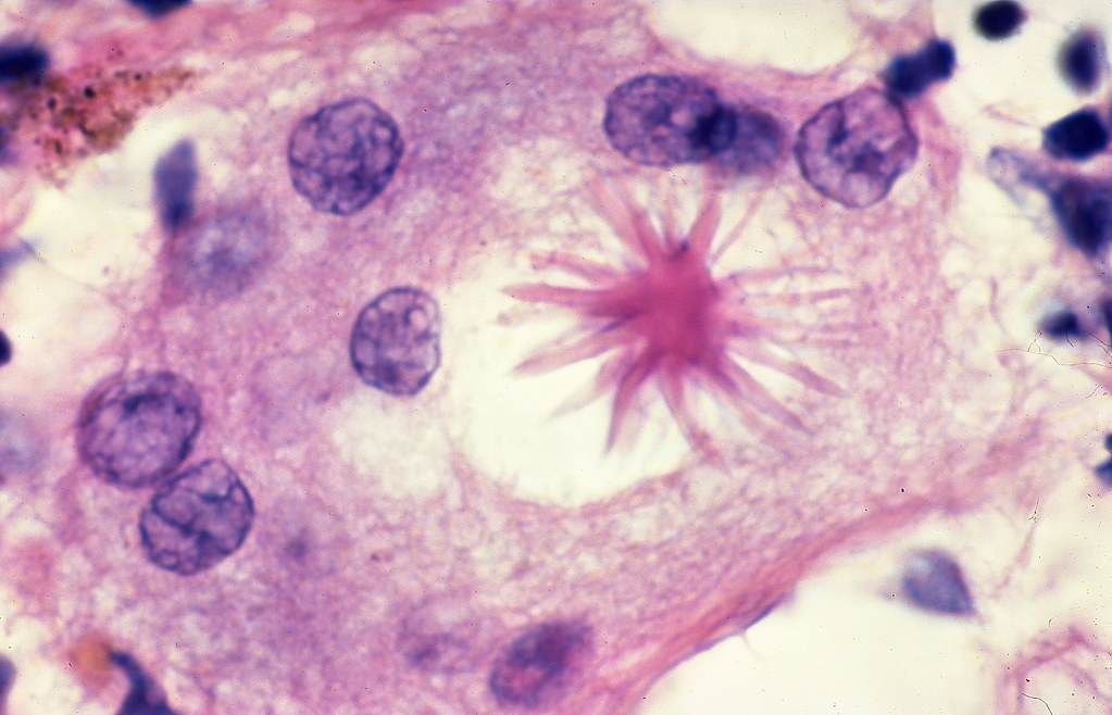Sarcoidosis - Asteroid body | Asteroid bodies are stellate