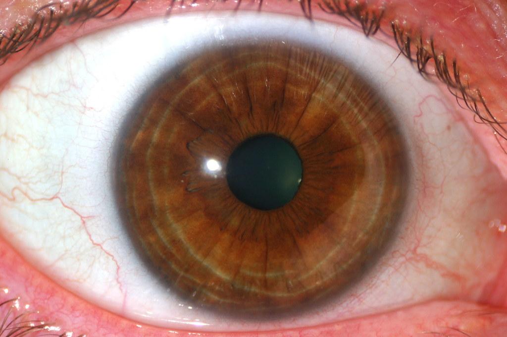 Brown Ring Around Pupil