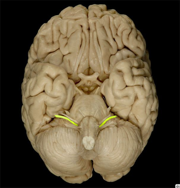 Vestibulocochlear Nerve | Vestibulocochlear Nerve | Flickr