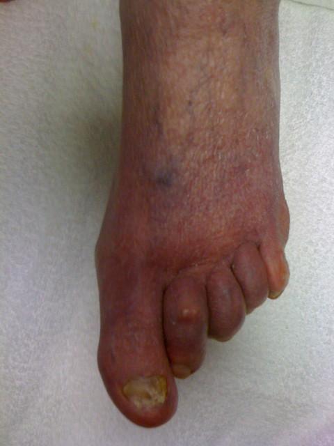 Yellow Toenails And Diabetes: Toenail Fungus Of The Big Toe