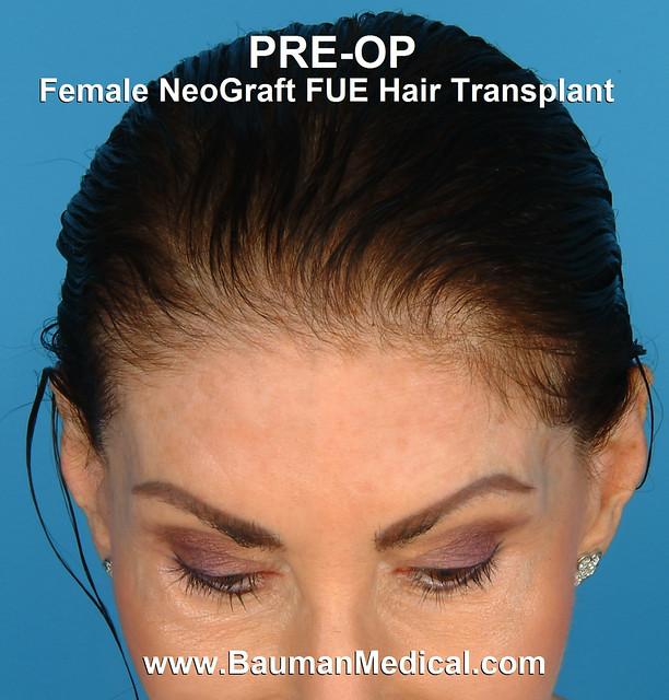 Female NeoGraft FUE Hair Transplant   Flickr