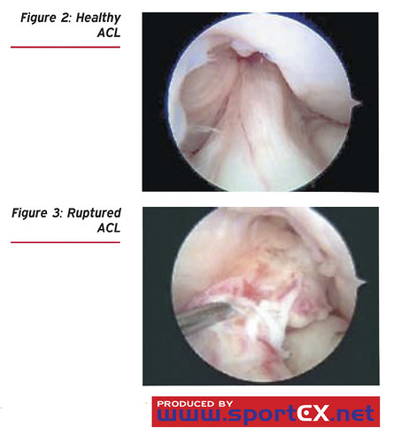 Ruptured Acl In Small Dog