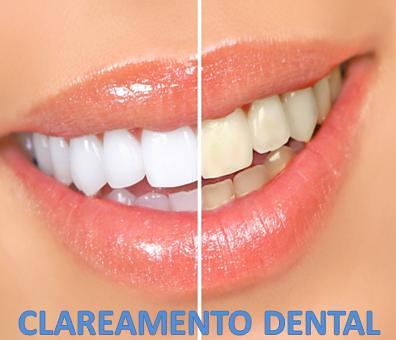 Clareamento Dental Campinas Lidia Dentista Flickr