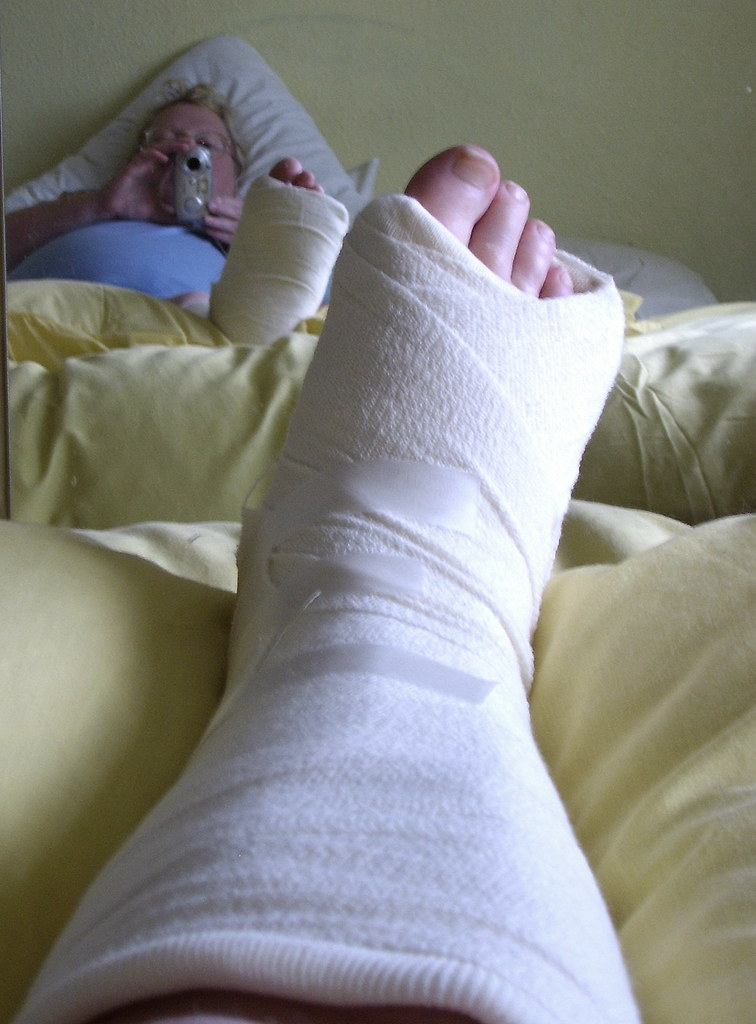 Broken Foot Bandage my Broken Foot