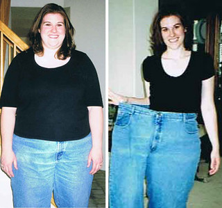 before after photos weight loss