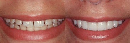 Image result for porcelain veneers
