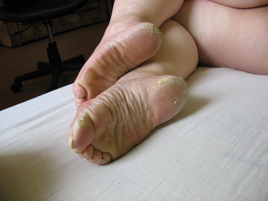 Rough soles wife mature fuckin wife feet in flipflops toes - 21 part 4