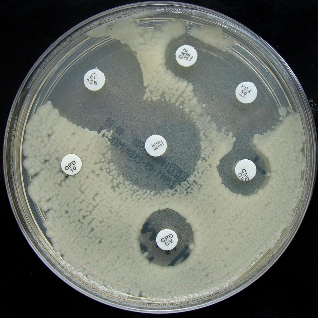 E.coli - E.S.B.L. Producer