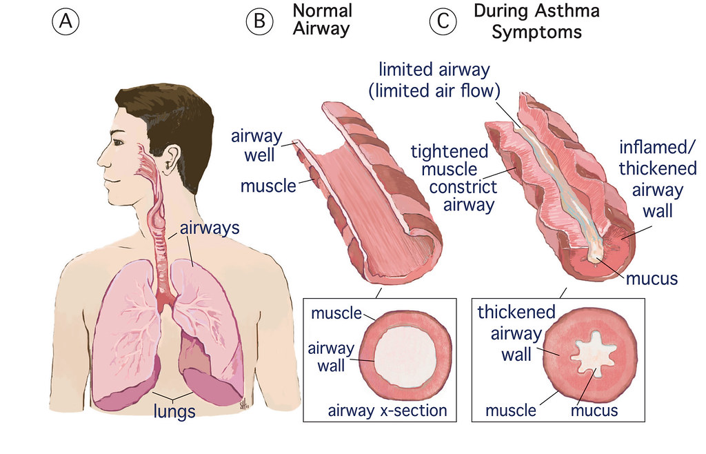 Asthma Pacific Northwest Agricultural Safety And Health