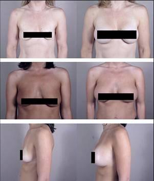 Breast augmentation cos phrase