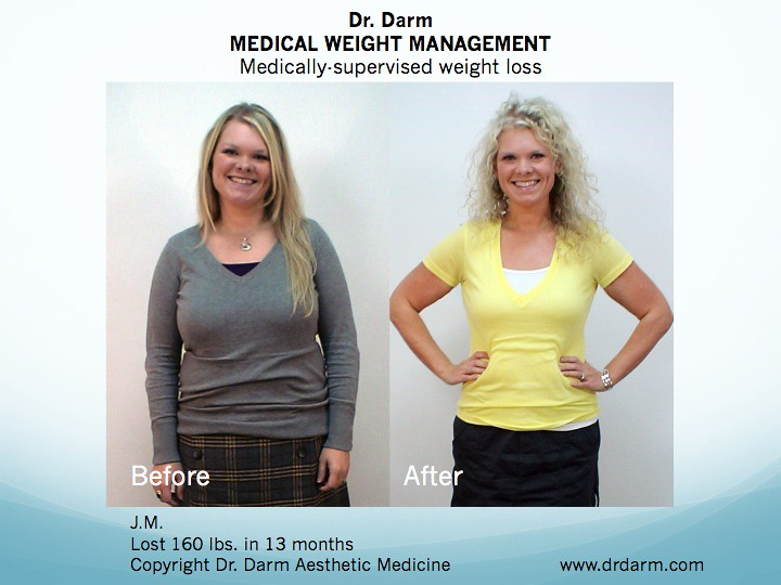 dr elchuri weight loss