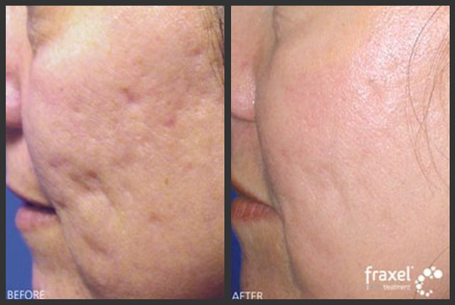 Fraxel Before & After: Acne Scar Laser Treatment | Flickr - Photo ...