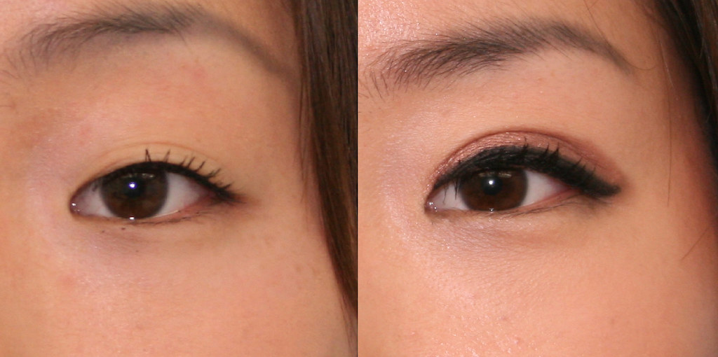 Before And After Double Eyelid Left Close Up View 8 West